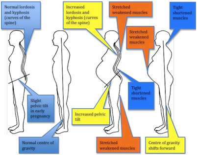 pain in curve of spine